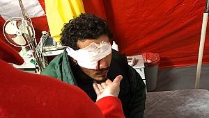 Yunanistan'ın attığı plastik mermi sığınmacıyı gözünden etti